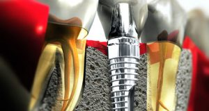 Ce reprezinta un implant
